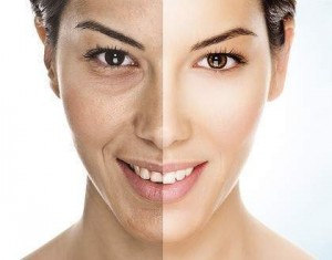 Anti ageing treatment with fillers - before and after