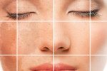 Laser Skin Treatment for Pigmented Lesions using Q-Switched Laser